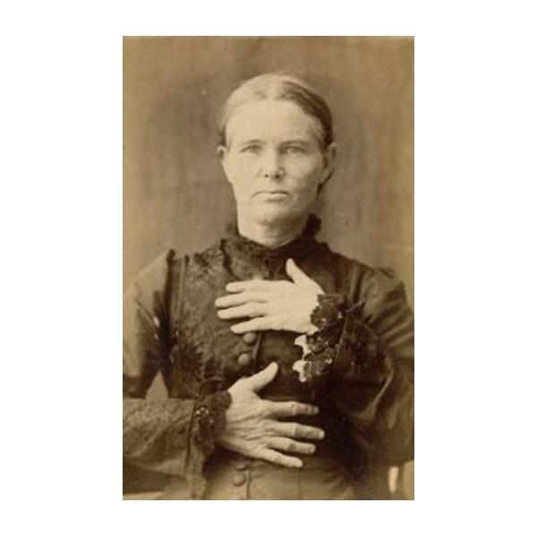 Ellen's Prisoner photo , to show she had all fingers, 1887